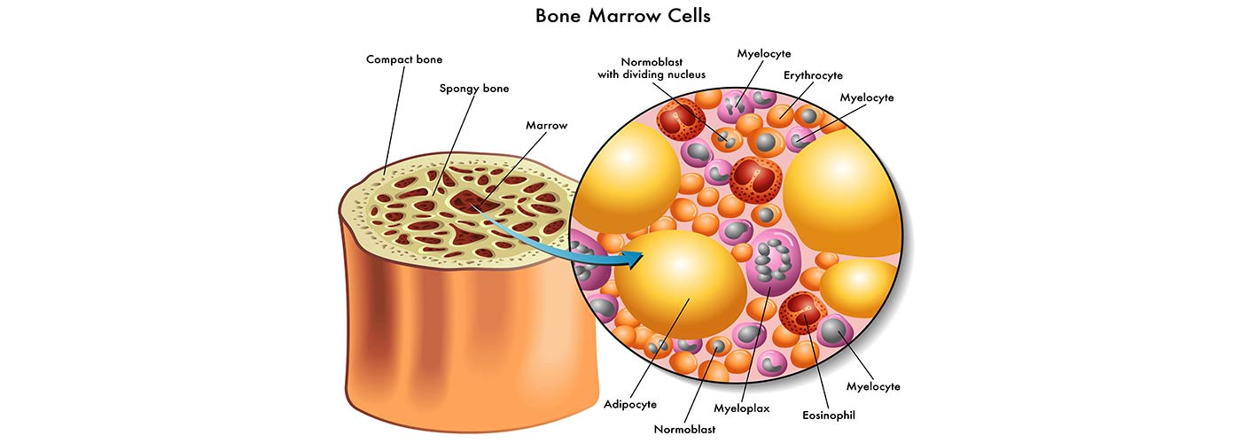 Does Methadone Get In Your Bone Marrow?